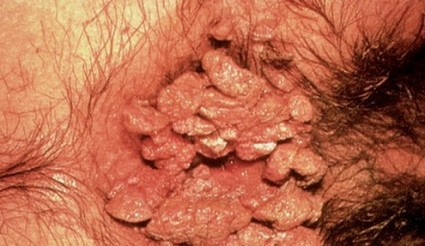 information on anal papillomas